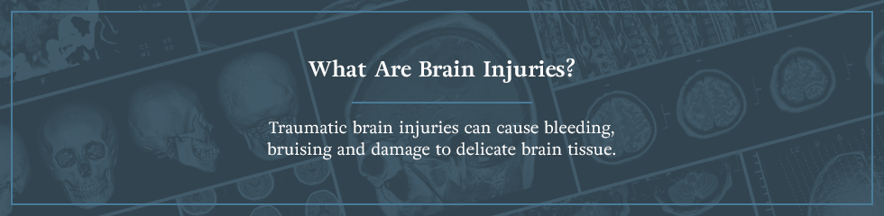 What are brain injuries?